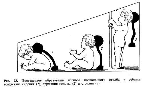 изгибы позвоночника ребенка